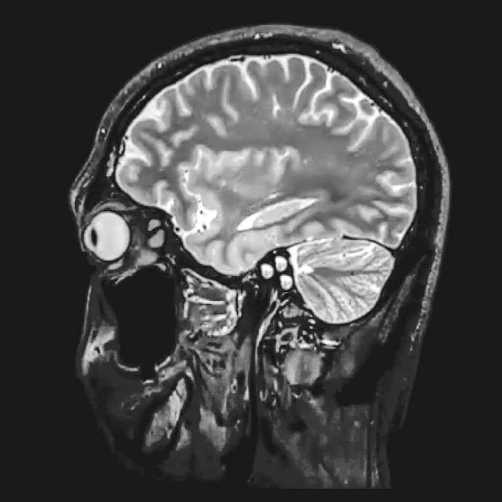 Uma avó comeu 1 libra de chocolate em 6 horas. Foi isso que aconteceu com seu cérebro. 1 Gostaria de ver mais destas receitas que foram publicadas,  vivendo de brigadeiro Vivendo de Brigadeiro